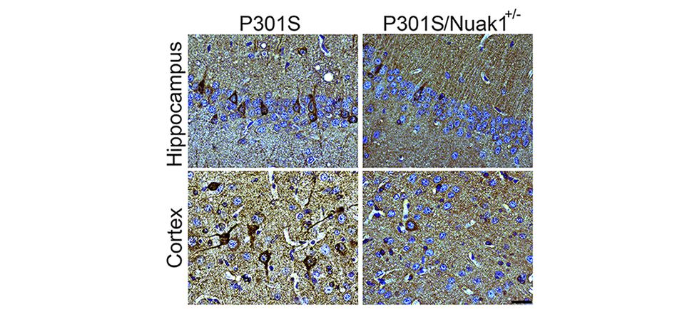 Brain section from mouse carrying the dementia-causing P301S mutation in human tau shows accumulation of tau neurofibrillary tangles (in dark brown, left). When Nuak1 levels are decreased by 50% (P301S/Nuak1+/-; right), fewer tau tangles accumulate. Credit: Cell