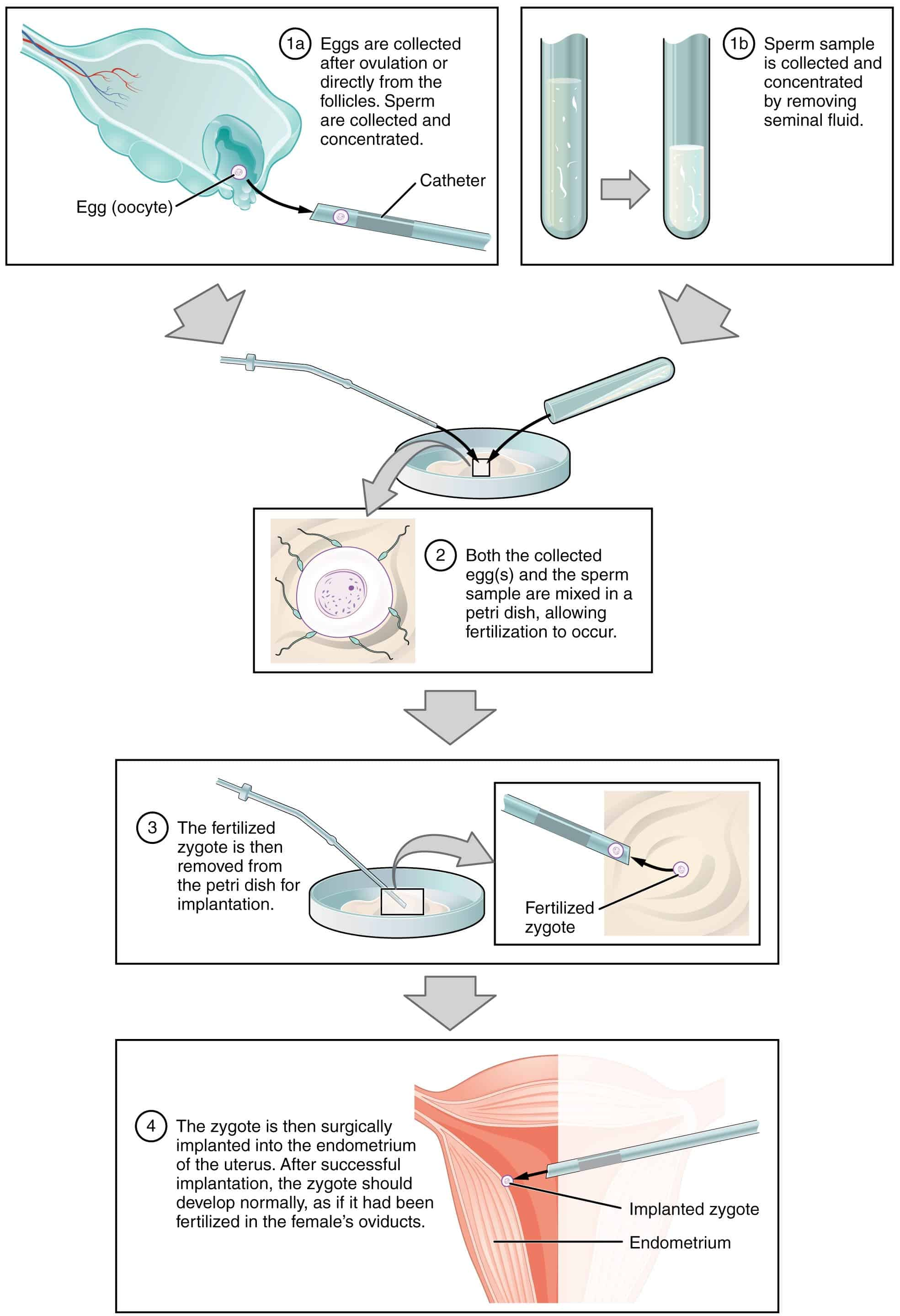 In Vitro Fertilization Sperm