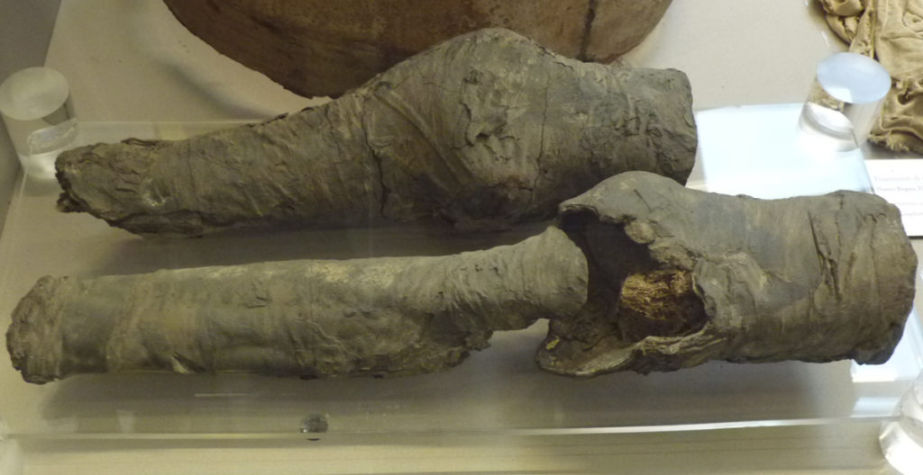 The mummified legs are all that's left of Nefertari -- even these are put into question. Credit: : Habicht et. al