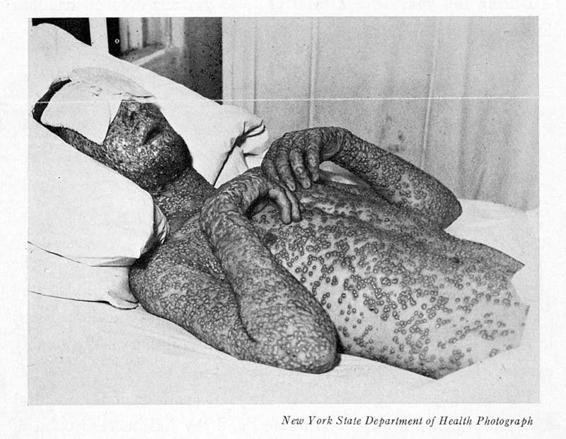 This photograph of a smallpox victim appeared in the Baltimore Health News in 1939 as a warning to people who had not been vaccinated. Credit: Chapin Library of Rare Books, Williams College.