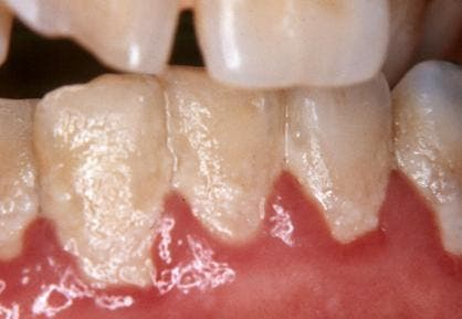 Biofilm on teeth, commonly known as dental plaque. Credit: Mead Family Dental.