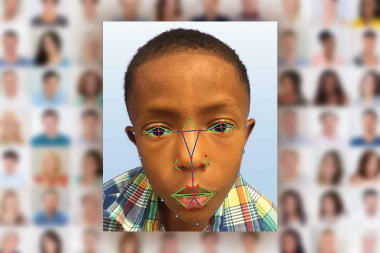 Facial recognition software can diagnose rare genetic