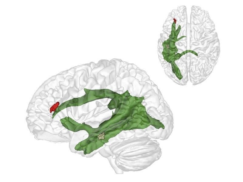 Maturation of fibers in the arcuate fascicle (green) establishes a connection between two critical brain region enabling the 'theory of mind'. Credit: MPI CBS