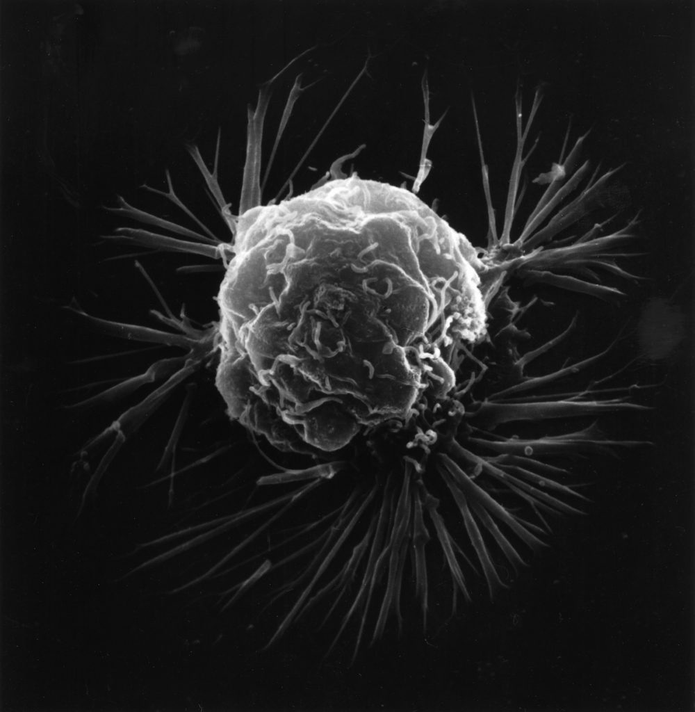 Breast_cancer_cell.