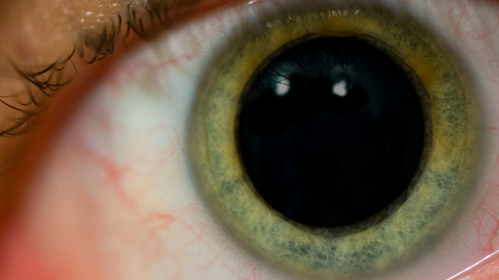 Dilated Pupil.