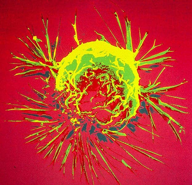 Breast cancer cell.