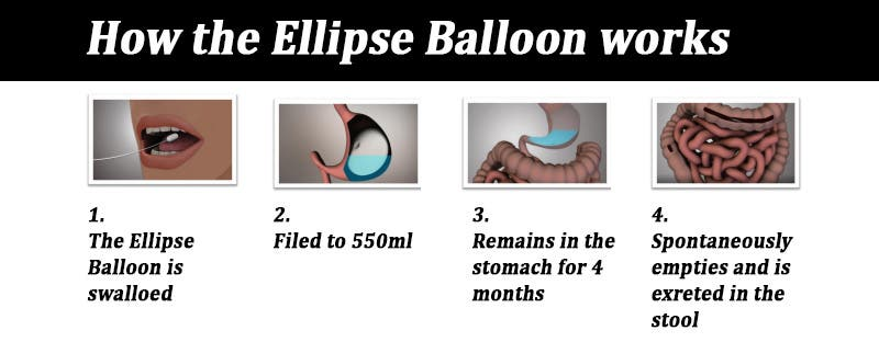 ellipse balloon