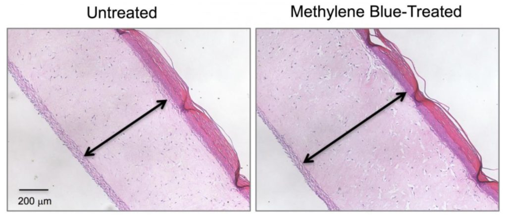 Untreated model skin (left panel) shows a thinner dermis layer (black arrow) compared with model skin treated with the antioxidant methylene blue (right panel). Credit: Zheng-Mei Xiong/University of Maryland.