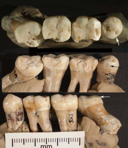 Three views of the four articulated teeth found in Croatia. 20. Occlusal view showing lingually placed mesial interproximal wear facet on P4 (arrow) and buccal wear on M3; b. lingual view showing a mesially placed interproximal wear facet on P4 (arrow), chips from lingual faces of all teeth and rotated, partially impacted M3; c. buccal view showing rotated buccal face of M3 (arrow) and hypercementosis on its root. Credit: David Frayer, University of Kansas