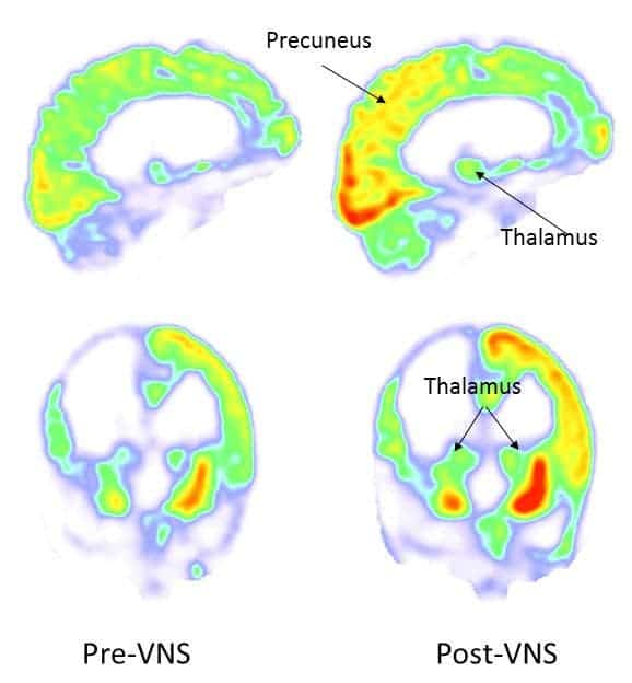 After vagus nerve stimulation, the metabolism increased in the right parieto-occipital cortex, thalamus and striatum. Credit: Corazzol et al.