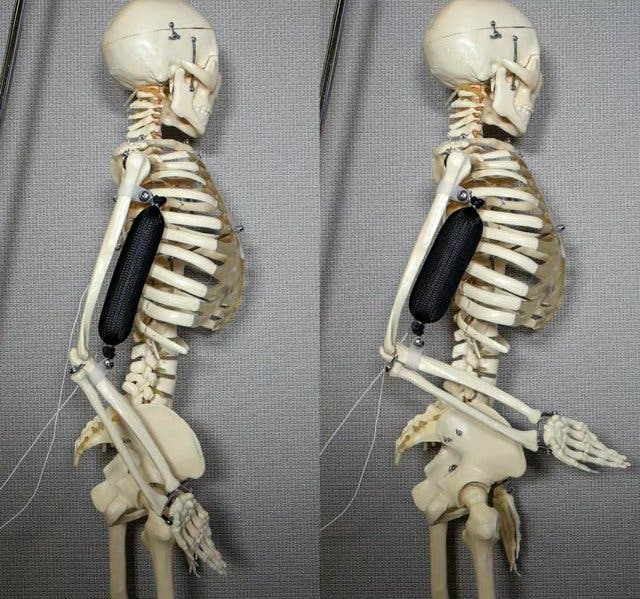 The artificial muscle seen here performing biceps motion in order to lift a skeleton's arm to a 90 degree position. Credit: Aslan Miriyev/Columbia Engineering.