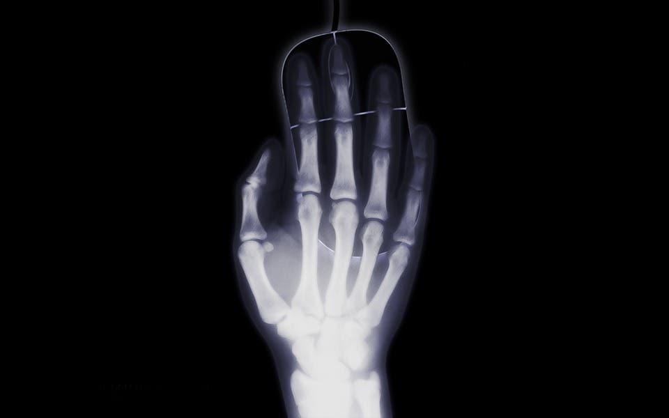 Xray hand.
