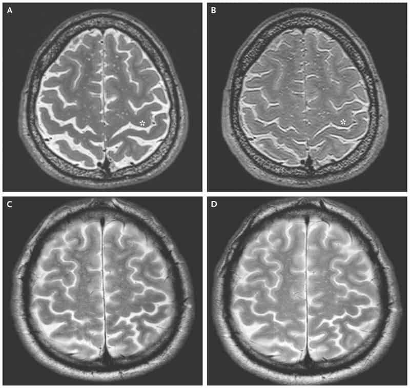 A and B are before and after brain scan images for long-term spaceflight astronauts. C and D are for short-term spaceflight. Credit: NEJM.