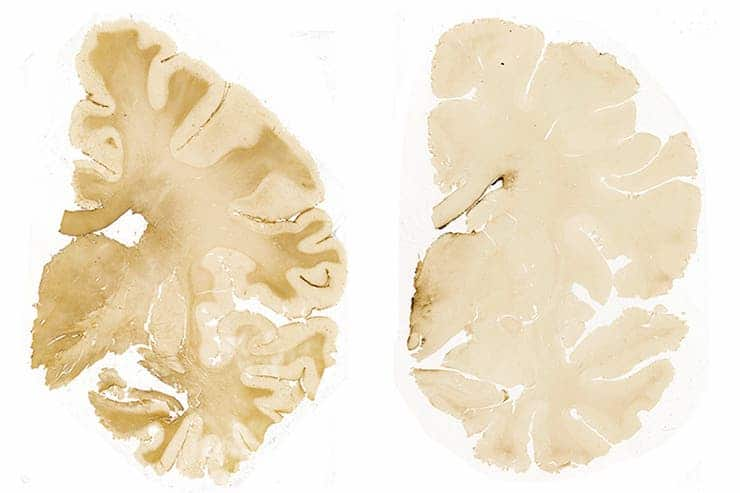 Sections from two brains used in the current study. The left sample comes from a 17-year-old male high school American football player who died by suicide two days after a closed-head impact injury. The brown stain indicates a widespread immune response, pointing to an abnormal increase in the number of astrocytes, a type of helper cell in the brain, due to the destruction of nearby neurons. The sample on the right, from the control group, shows the brain of a 22-year-old male and former high school American football player who also died by suicide, with no history of recent head injury. (Credit: Boston U. School of Medicine).