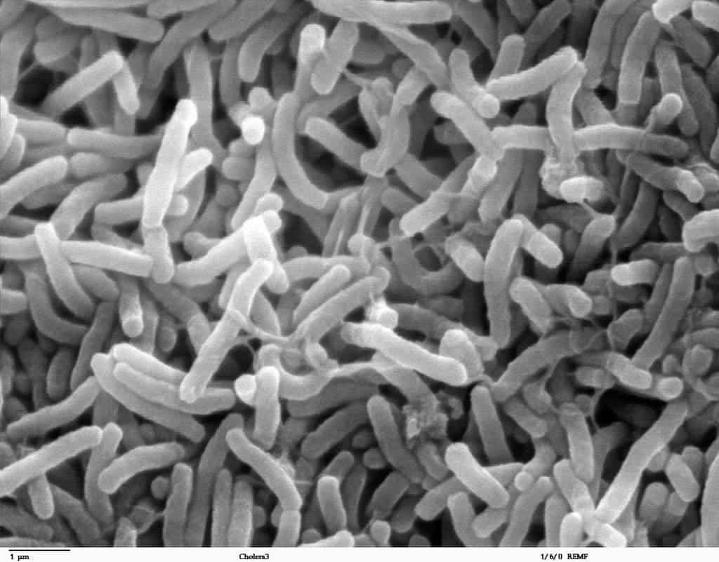 cholera_bacteria_nise-1