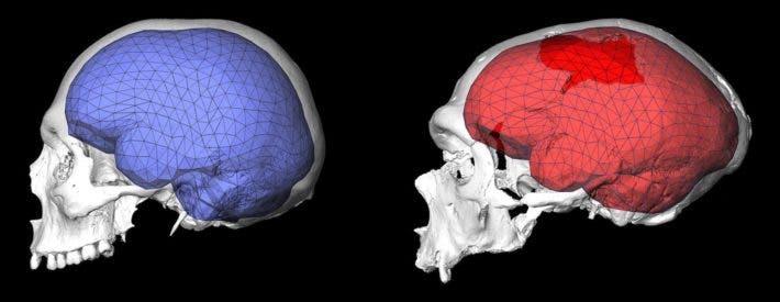 Brain comparisons.
