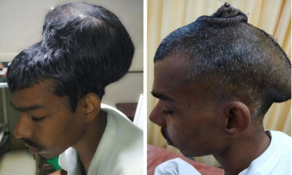 Santlal Pal before and after he had his huge tumor removed. Credit: Nair Hospital.