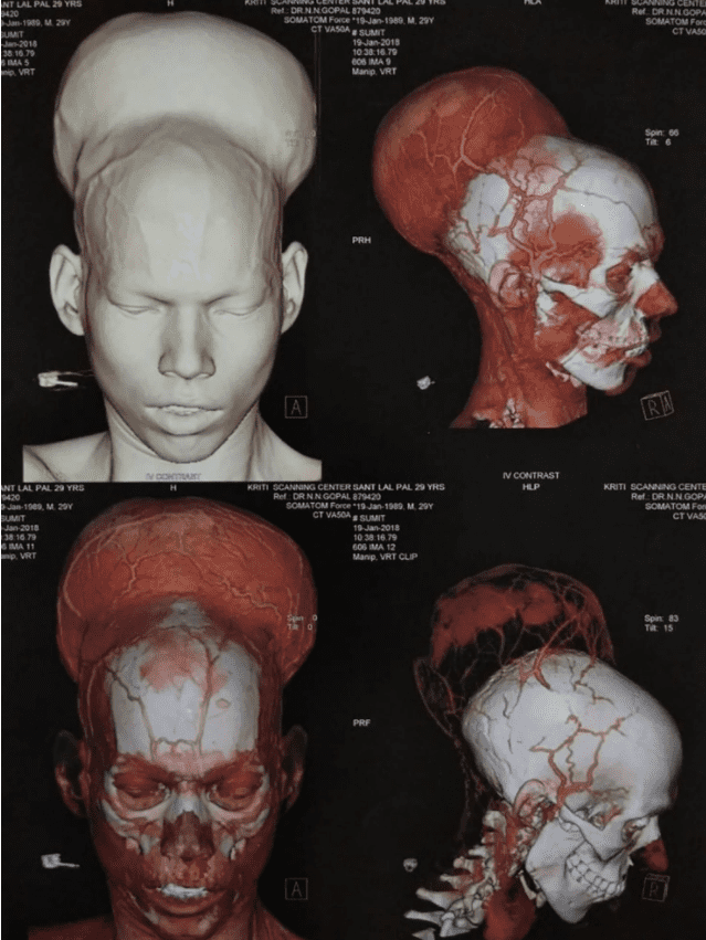 Santlal Pal's scans of his skull, showing the blood vessels that surround the tumor. Credit: Nair Hospital.