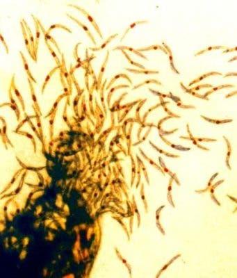Malaria sporozoites.