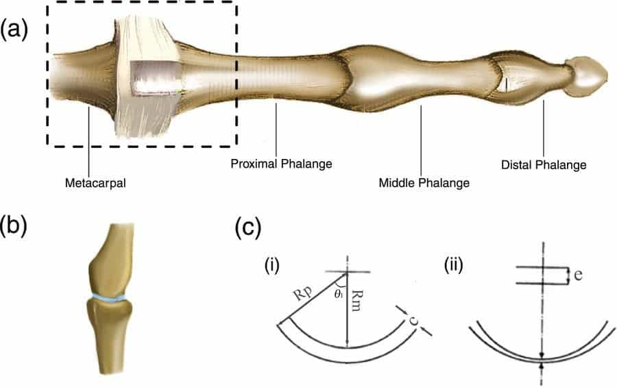 (a) The third metacarpophalangeal (MCP) joint. (b) Rendered image of the MCP joint as seen through MRI4 (synovial fluid has been added for clarity). (c) 2D approximation of the MCP Joint. Panel (i) shows the definition of the radii and the joint clearance. Panel (ii) shows a schematic of the 2D approximation of the MCP joint, where the centres of the two circular arcs are separated with an eccentricity e. Credit: Scientific Reports.