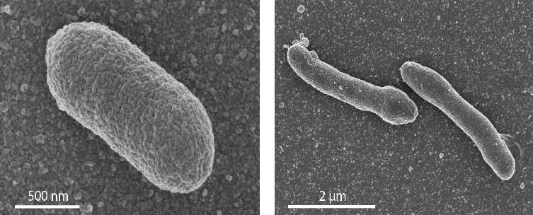 Left: Electron microscope image of a normal E. coli cell. Righl: an engineered cell with a mixed membrane, which shows an elongated form. Credit: University of Wageningen / Van der Oost laboratory.