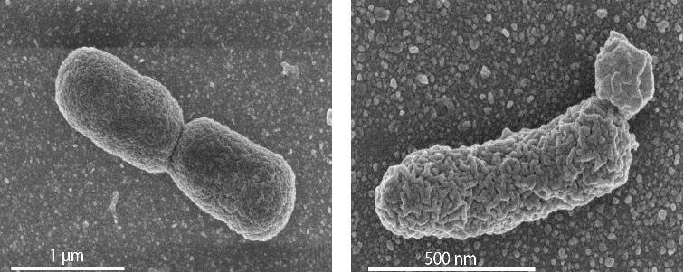 In the left panel: EM image of a normal dividing E. coli cell. Right panel: an engineered cell with high archaeal lipid production, showing lobular irregularities in the cell membrane. Credit: University of Wageningen / Van der Oost laboratory.