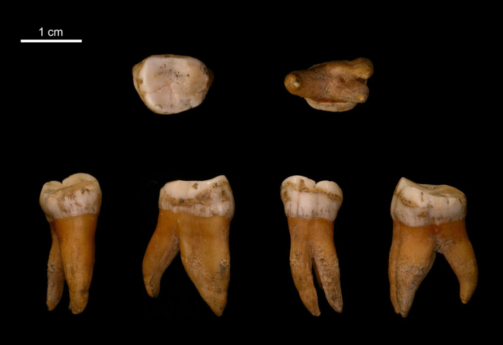 Upper molar of a male Neandertal from Spy, Belgium.Credit: I. Crevecoeur.