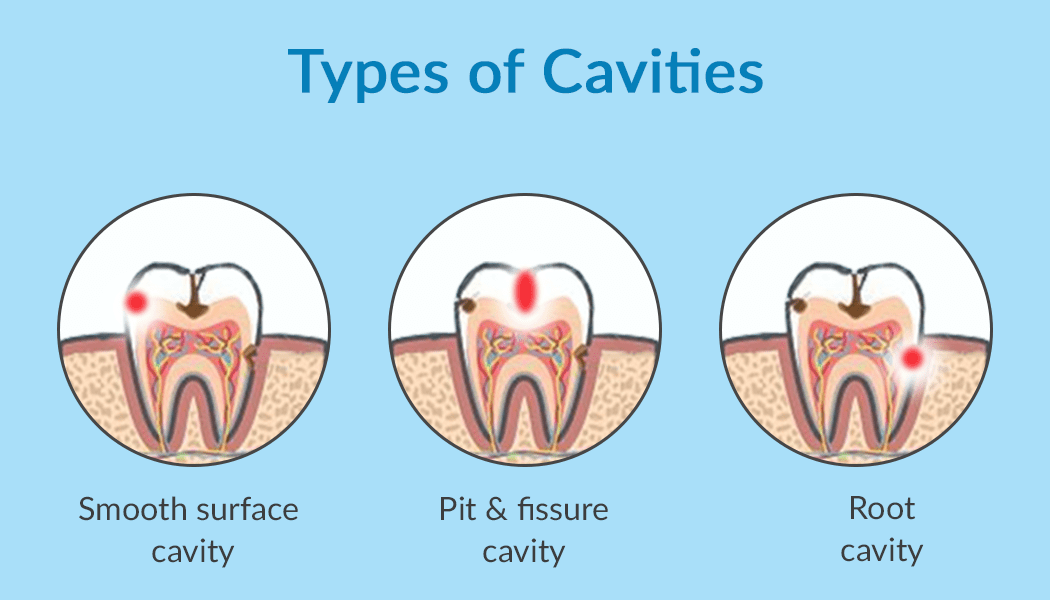 Ilustrasi macam-macam gigi berlubang