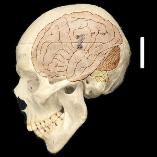 Skull and brain.