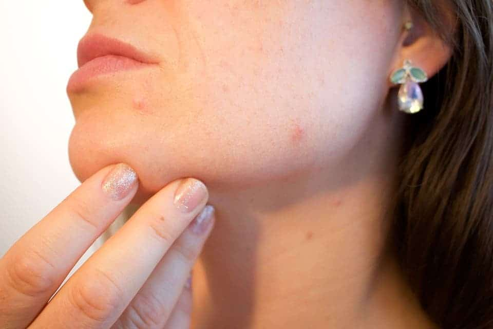 Why you shouldn't pop your pimples -- Really, you shouldn't