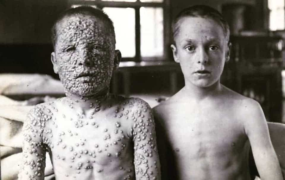 These two boys had been exposed to the same smallpox source. One had been vaccinated, the other hadn't. This is a genuine photograph that was taken in the early 1900s by Dr. Allan Warner of the Isolation Hospital at Leicester in the UK.