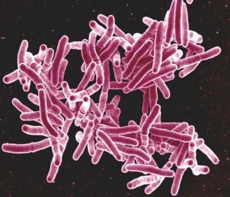 Scanning electron micrograph of Mycobacterium tuberculosis bacteria, which cause TB. Credit: NIAID, Flickr.
