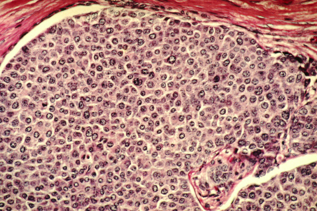 Breast cancer cells. Credit: Wikimedia Commons.