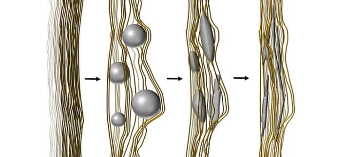 n: Strings of a polymerised liquid crystal act as the strings of collagen in the body. The amorphous calcium phosphate (in grey) enters the strings and begins to crystallise, creating the artificial bone-like material. ​ ​Illustration: Anand Kumar Rajasekharan/Chalmers University of Technology.