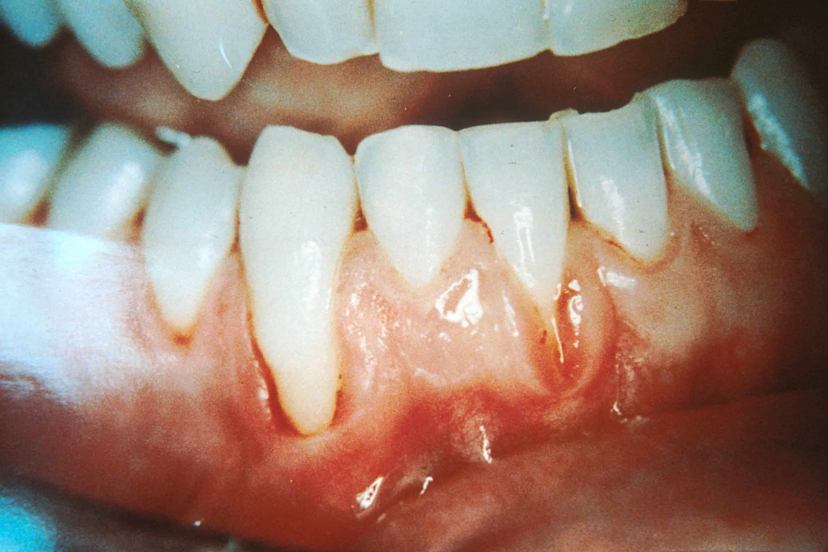 Could gum disease lead to Alzheimer's?