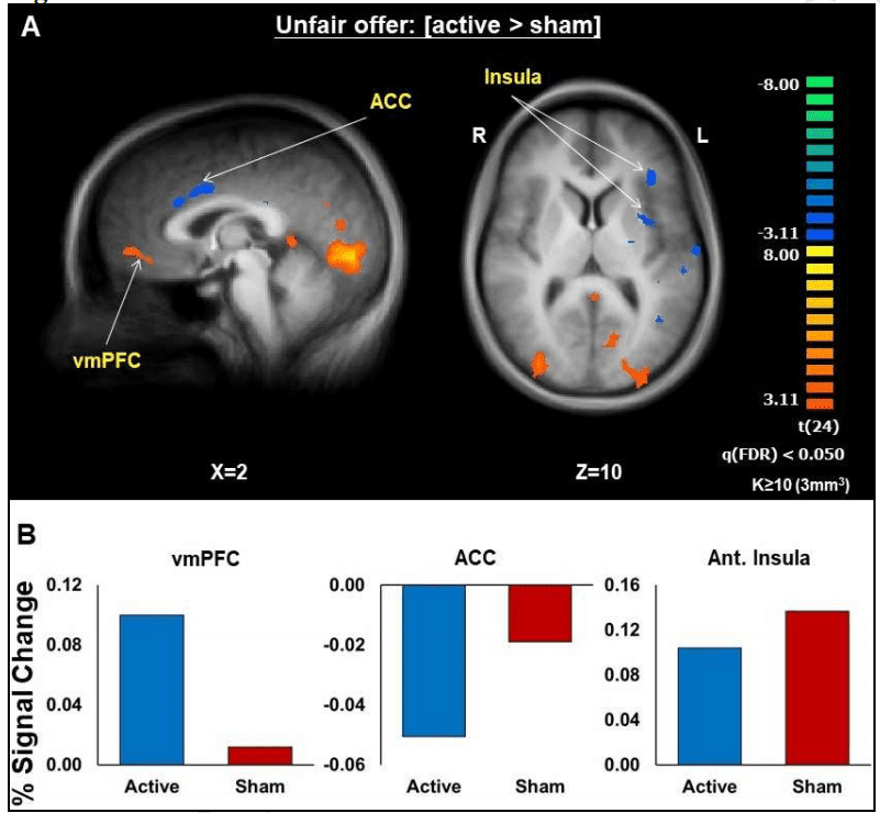 Active stimulation led to increased activity in the vmPFC.