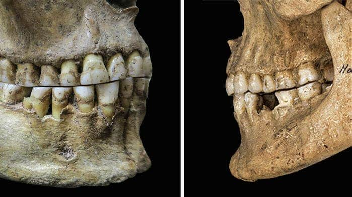 Edge-to-edge overbite of ancient hunter-gatherer woman (left) vs overbite configuration seen in Bronze age male (right). Credit: Science.