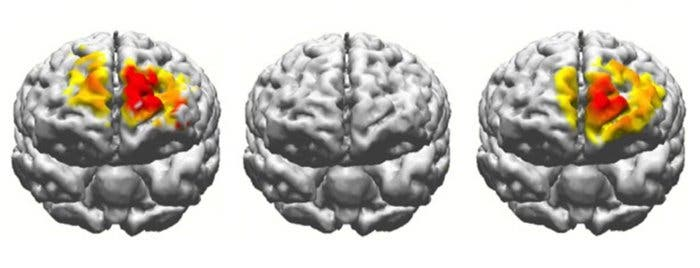 Schematic showing the stimulated brain regions. Credit: Boston University.