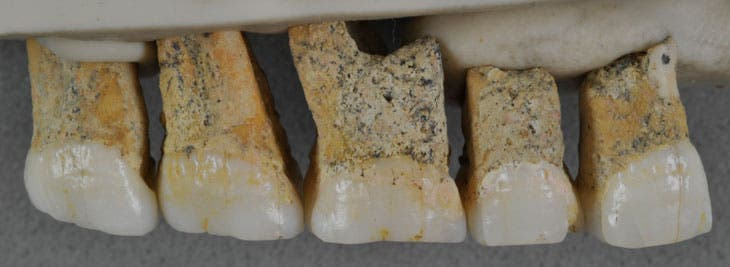 Five fossil teeth from the same individual have unusual features that helped researchers determine that they might be dealing with a new species of human. Credit: CALLAO CAVE ARCHAEOLOGY PROJECT.