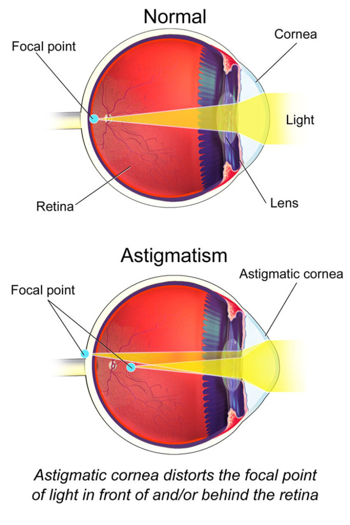 f4033ba36e1 This viral image is making people realize they have astigmatism