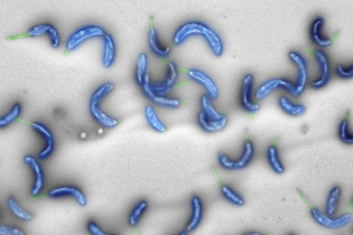 An electron microscope image of Caulobacter crescentus, a harmless bacterium living in fresh water. Credit: ETH Zurich.