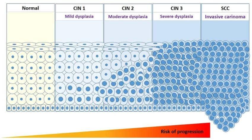 hpv vírus cin 2)