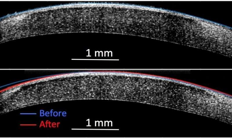 A new noninvasive process can alter the curve of a cornea from that seen in blue in a) to the new position seen in red in b) to fix vision problems. Credit: Rachel Qu, Anna Stokolosa, Charlotte Cullip.