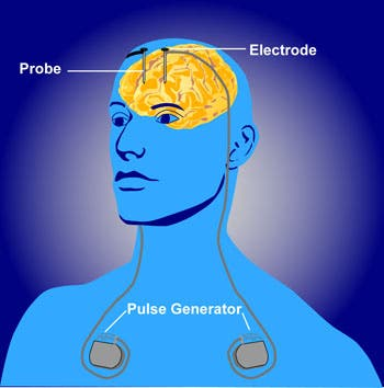 Schematic of deep brain stimulation procedure. Credit: Wikimedia Commons.