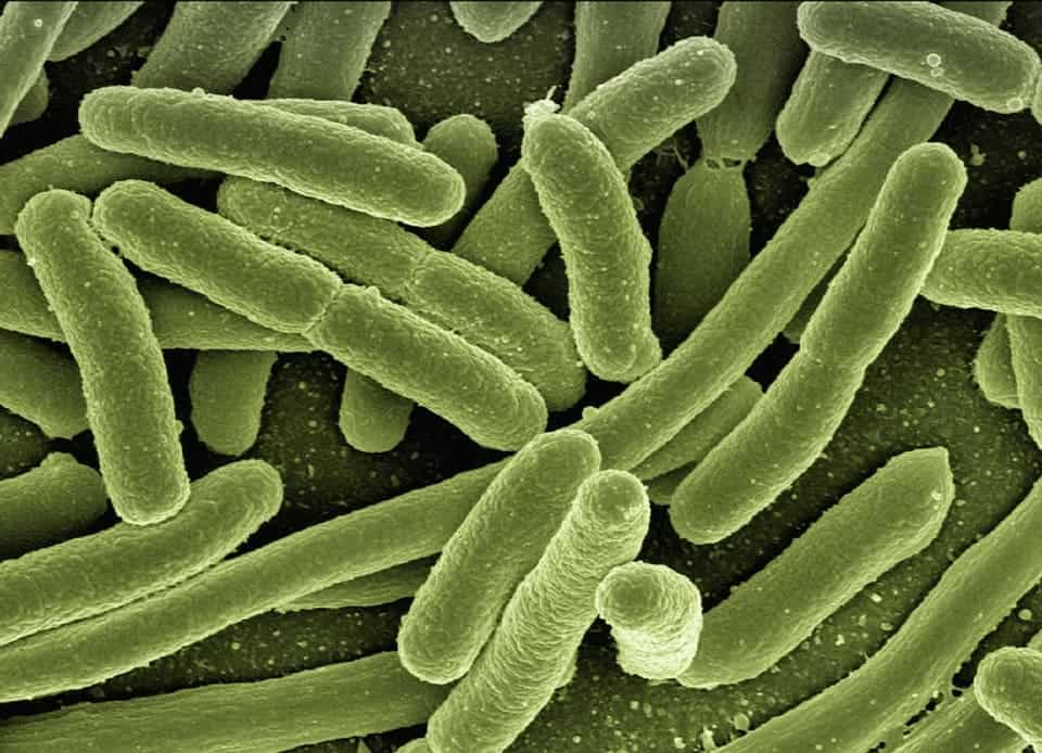 Escherichia Coli.
