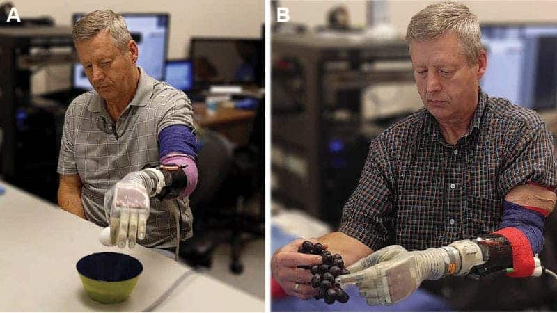 A high-tech prosthetic hand allows users to experience touch. Credit: University of Utah.