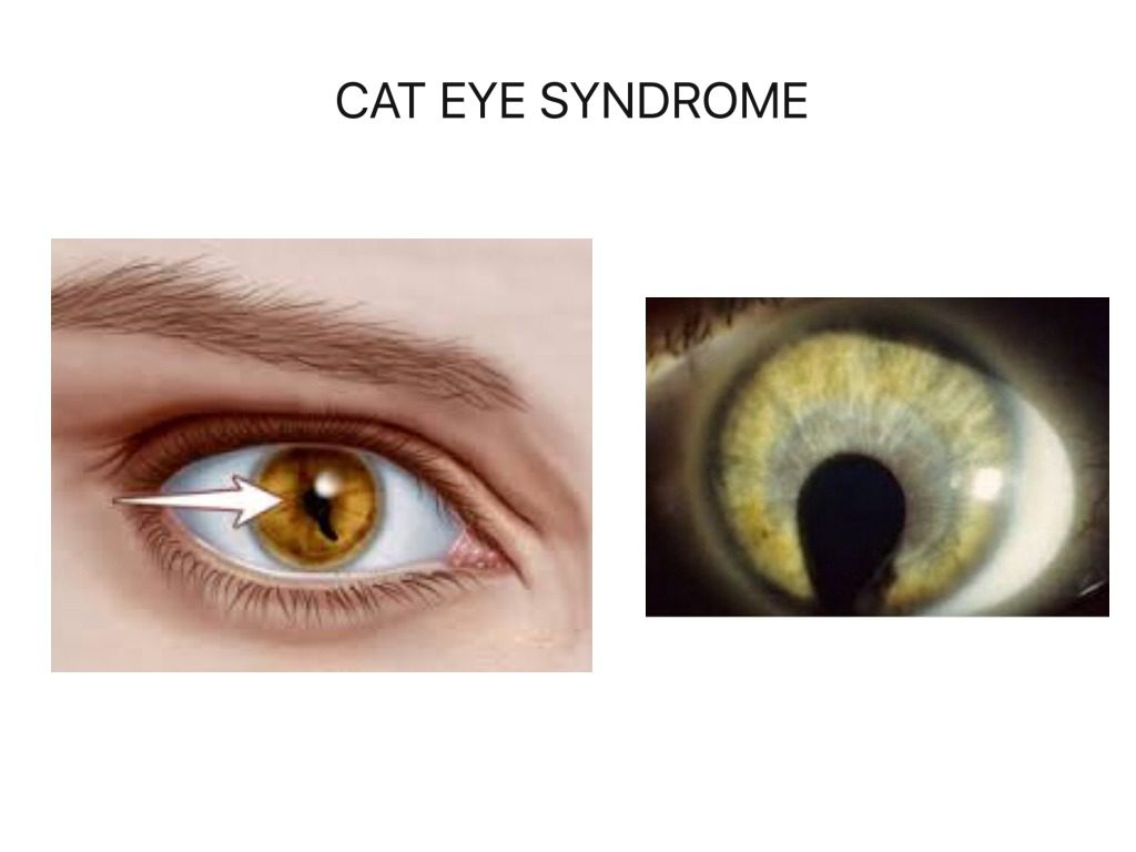 Cat-eye syndrome