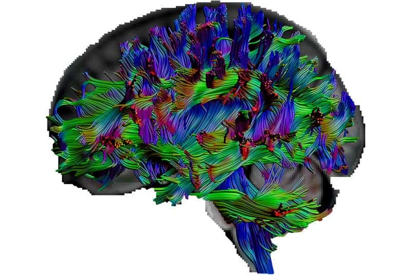 Diffusion tensor imaging, a type of magnetic resonance imaging, allowed researchers at Ruhr-Universität Bochum and Humboldt-Universität zu Berlin to vizualize the pathways of nerve fibers in various human subjects. Credit: Erhan Genç.