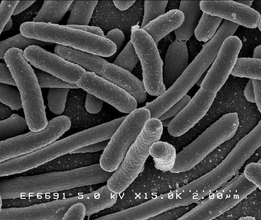 Landmark study shows strong links between gut microbes and health